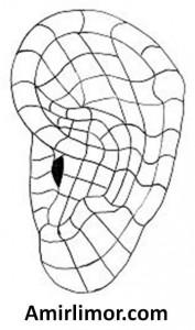 מפת-אוזן-אוריקולרטרפית-177x300